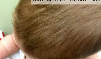 How to Cure Cradle Cap
