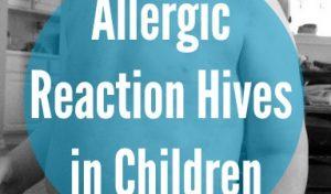 Allergic Reaction Hives in Children
